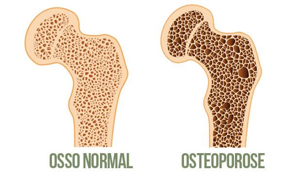 As mulheres têm uma pré-disposição maior para desenvolver osteoporose que os homens
